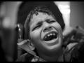 Aman Qureshi : 11 ans, retard mental et paralysie cérébrale athétoïde, affecté par le gaz, n'habite pas en zone contaminée.